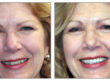 kathy before and after
