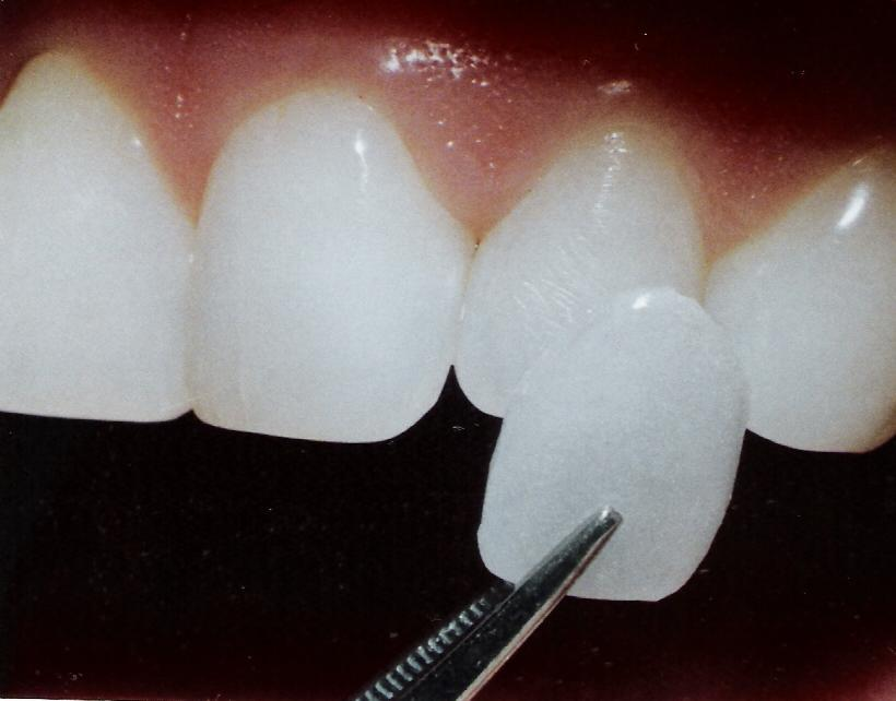 veneer getting placed over tooth